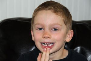 Eli-tooth